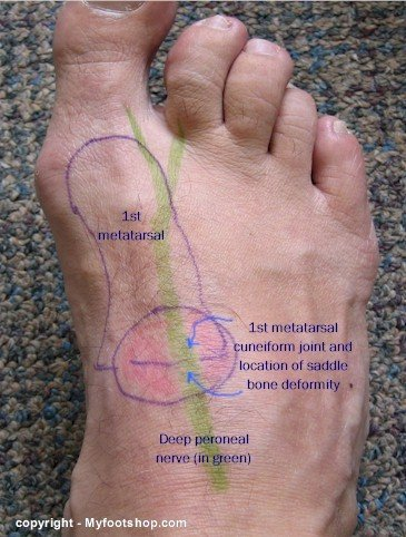 Distribution Of The Deep Peroneal Nerve Myfootshop Com