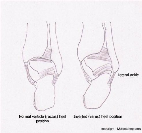 Lateral Ankle Positions - Posterior View