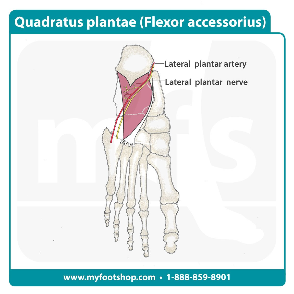 Image of the quadratus plantae muscle of the foot