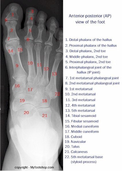 X-ray of the Foot - Anterior-Posterior View