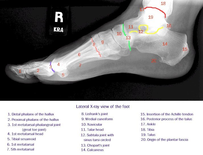X-ray of the Foot - Lateral View