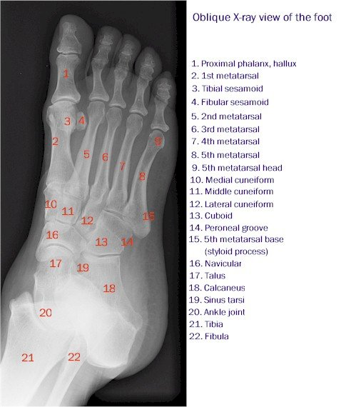 X-ray of the Foot - Oblique View