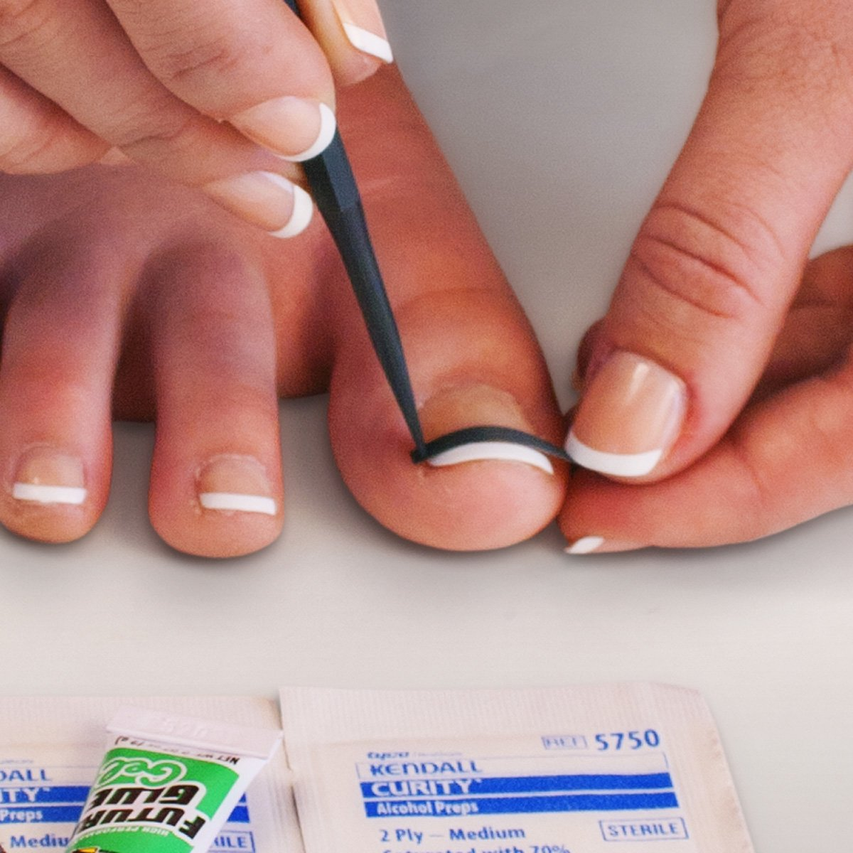 NailEase Ingrown Nail Treatment