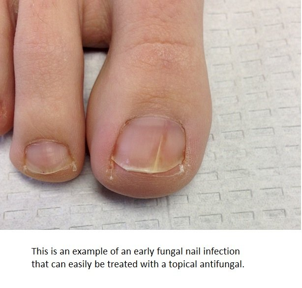 How is Urea used to treat fungal infections of the toe and finger ...