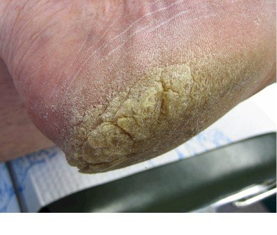 Cracked Heel Treatment - Tips & Advice - Pain Relief ...