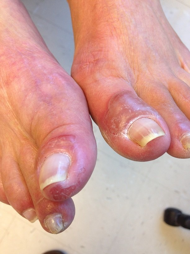 Pemphigus vulgaris of the foot