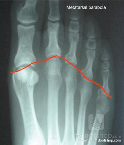 x-ray image of the metatarsal parabola