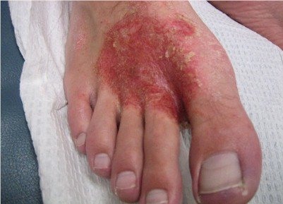 superficial cellulitis of the foot