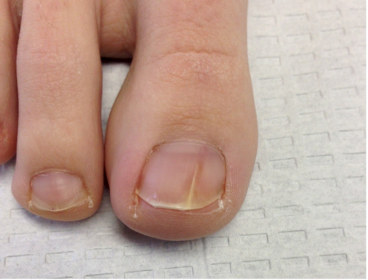 Early onychomycosis