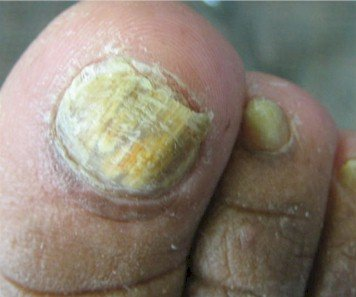 Intermediate stage onychomycosis