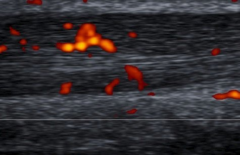 Doppler image of Achilles tendon - grade III vascularization
