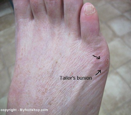 Tailor's bunion