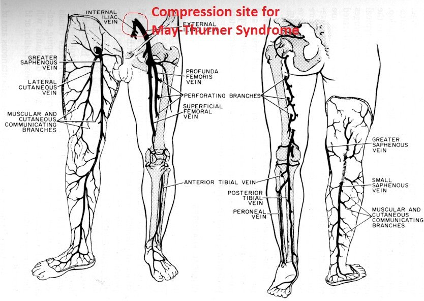 May-Thurner venous compression
