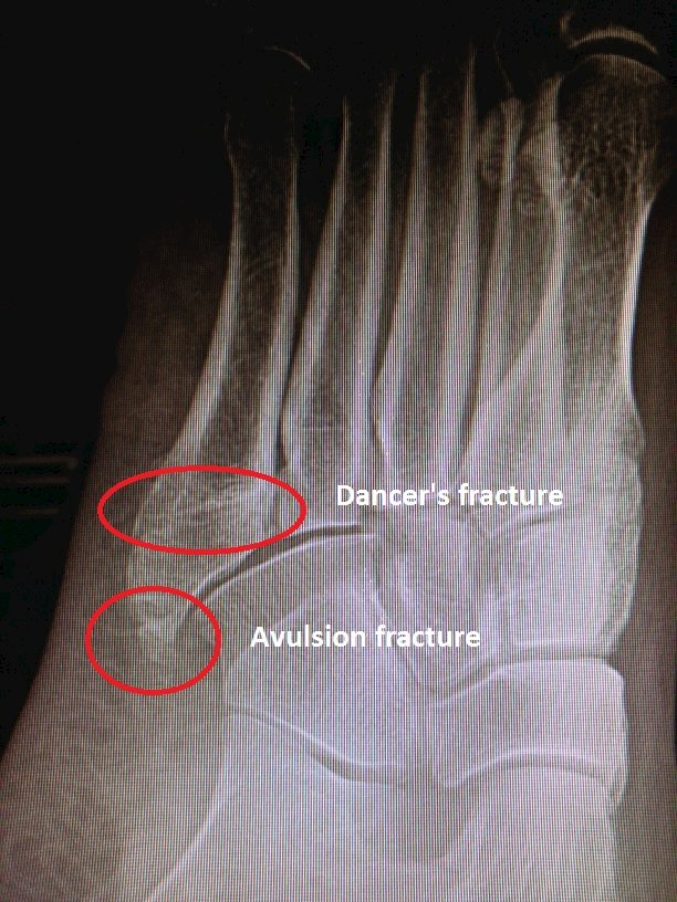 5th metatarsal avulsion and dancer's fracture