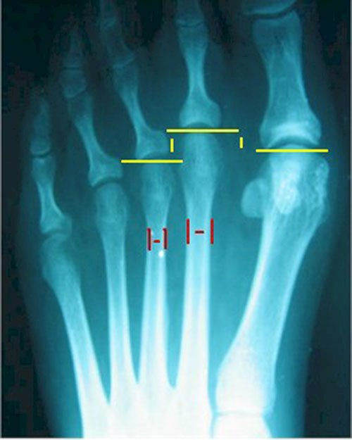 X-ray of the foot with metatarsal deformity