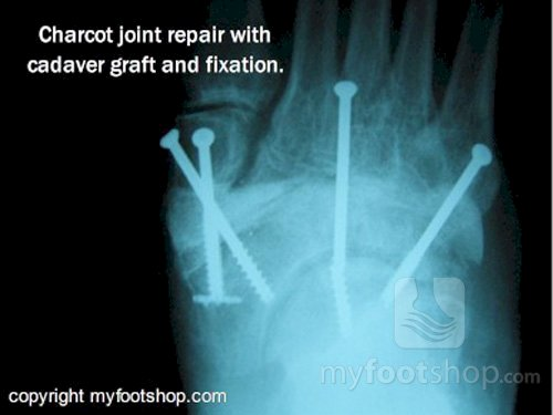 x-ray Charcot joint