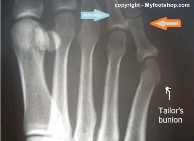 X-ray tailor's bunion