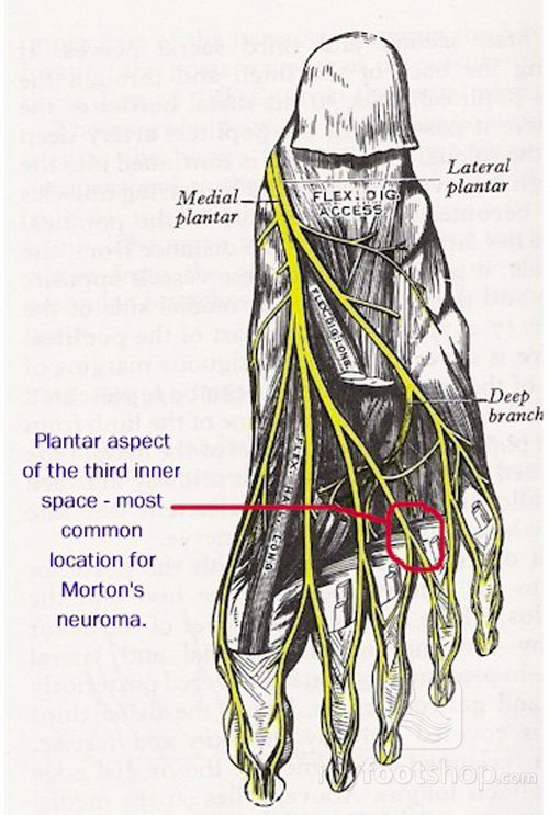 anatomy of Morton's neuroma