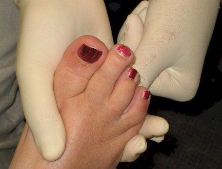 Muldier's sign for Morton's neuroma