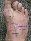 Tinel's_sign_deep_peroneal_nerve