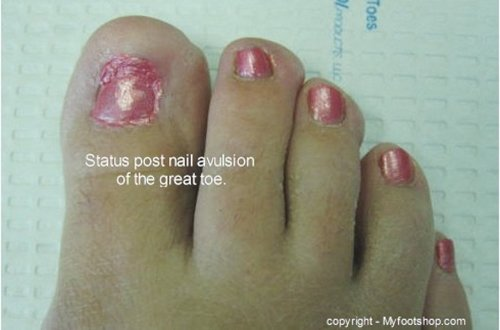 When all else fails, the fungal toe nail can be permanently removed