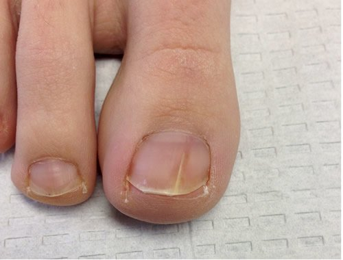 skinsight - Common Nail Problems