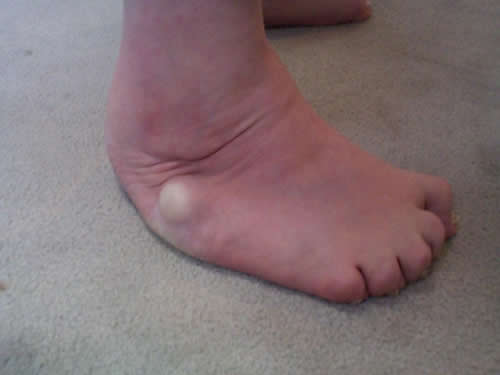 Final, sorry, club foot in adult not