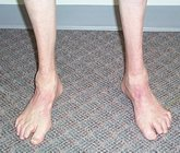 Charcot-Marie_Tooth_Disease