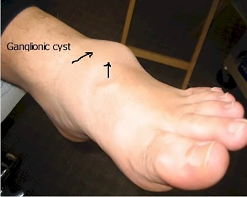 the origin of ganglionic cysts is debated, but these cysts are fluid