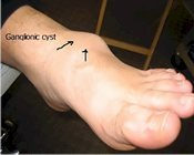 Ganglionic cyst of the foot