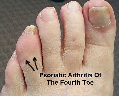 arthritis of the foot and ankle causes and treatment options