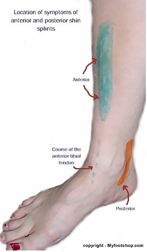 Shin Splints information at MyFootShop.