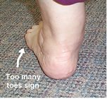 Too_many_toes_sign