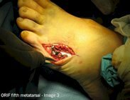 Metatarsal_fracture_surgery_image3