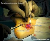 Tarsal tunnel release surgery