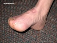 forefoot_amputation