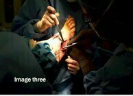 Charcot_joint_surgery_image3