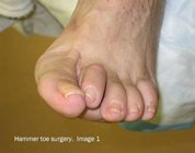 Hammer_toe_surgery_image1