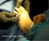 Hammer_toe_surgery_image2