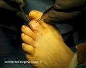 Hammer_toe_surgery_image3
