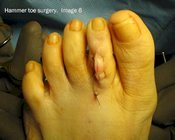 Hammer_toe_surgery_image6