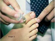 Ingrown_toe_nail_surgery_image1