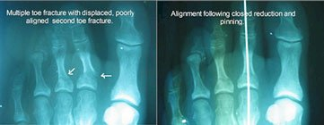 closed_reduction_broken_toe