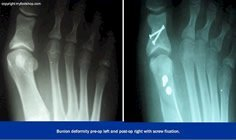bunion_x-ray_pre-op_and_post-op