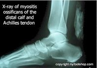 myosits_ossificans_x-ray_ankle