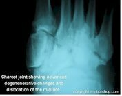 Charcot_joint_post-op_x-ray