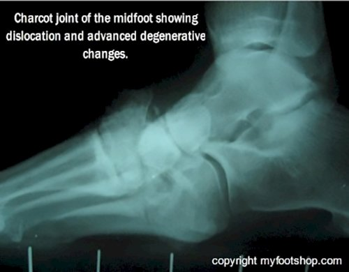 Charcot Joints | Causes and treatment options| MyFootShop.com