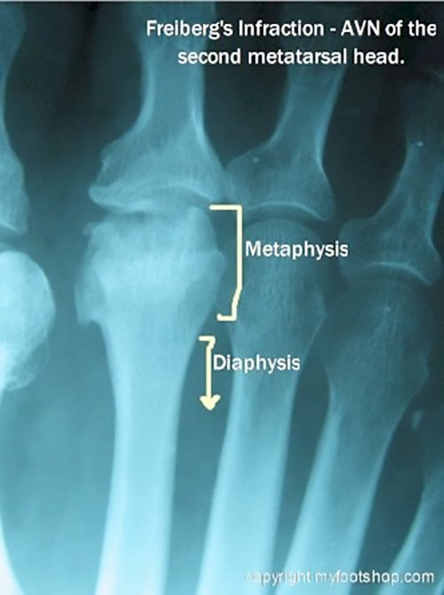 Freibergs Infraction Causes And Treatment Options Myfootshopcom