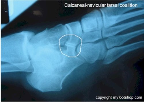 Exercises For Accessory Navicular Syndrome