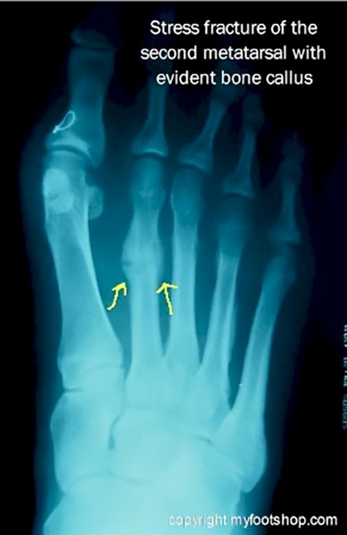 Metatarsal Fractures | Causes and treatment options ...